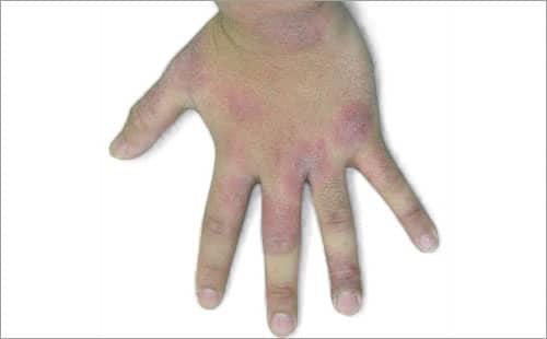手 湿疹 治療