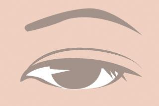 眼瞼下垂(保険診療)