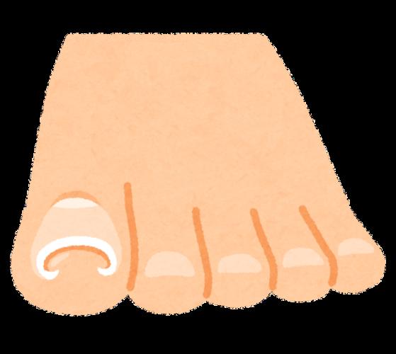 ヒロクリニック巻き爪